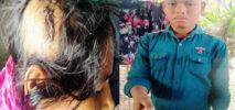 চকরিয়ায় শিক্ষার্থী ছেলেকে মারধর ; প্রতিবাদ জেরে মাকে কুপিয়ে জখম