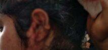 টেকনাফে প্রতিপক্ষের হামলায় ৪ নারী আহত