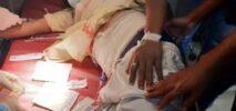 কক্সবাজারে সাবেক ছাত্রলীগ নেতা মোনাফ সিকদার গুলিবিদ্ধ